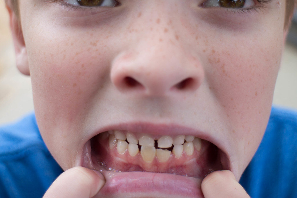 boy with chipped bottom tooth