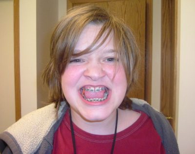 braces face